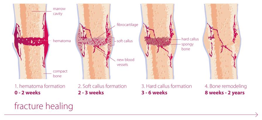 Fracture healing - TOBIG